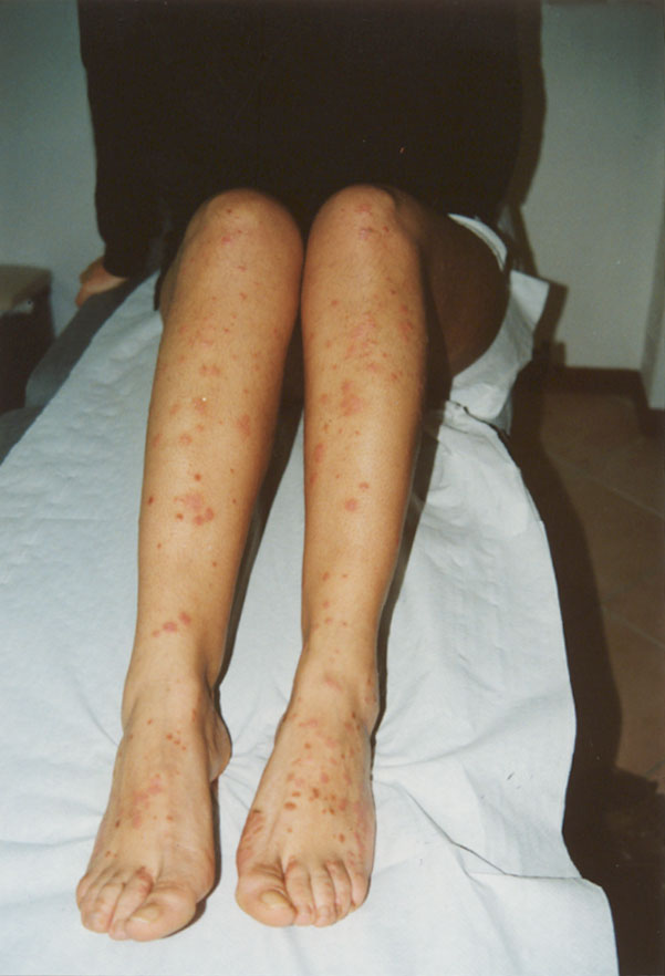 Unguento con argento per cura di eczema su