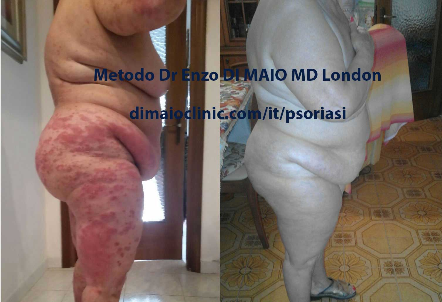 Psoriasis a Placche Cura Naturale Gambe e Glutei