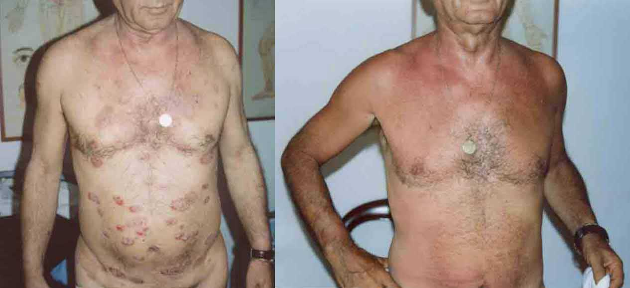 Psoriasis a Placche Addome Pancia cura naturale