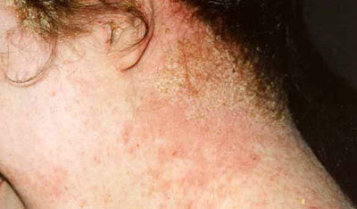 Le sel du psoriasis de la tête