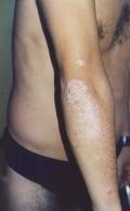 Atopitchesky la dermatite chez les nourrissons quest dangereuse